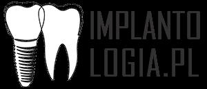 Implantologia - wszystko o implantach stomatologicznych